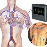Electrocardiogram heart health