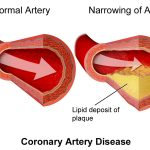 Normal artery