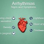 Symptoms of irregular heart