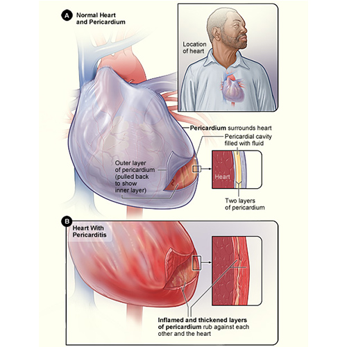 normal and enlarged heart