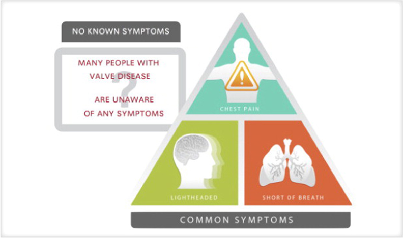 common symptoms of heart valve disease