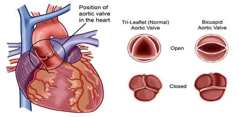description about heart valve disease