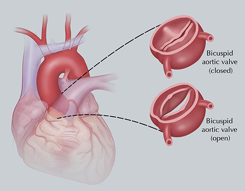 description of abnormal bicuspid aortic valve