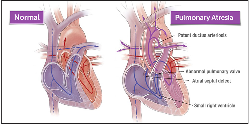 the difference between normal and pulmonary