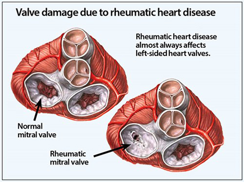 the effect of rheumatic fever to heart valve