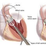 the installation of catheter