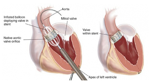 heart valve replacement is conducted by placing replacement pipe
