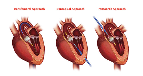 three kinds of heart valve replacement