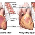 artery with plaque buildup