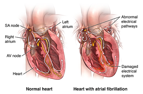 heart with atrial fibrillation