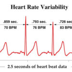 precise data about heartbeat and heartbeat change