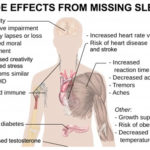 sleep deprivation effects