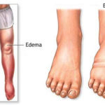 foot swelling or edema