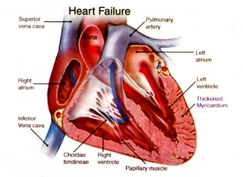 heart failure one of heart problems