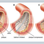 the process of angioplasty applied