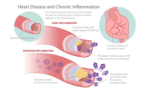 correlation between heart disease and inflammation
