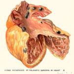 sarcoma in heart