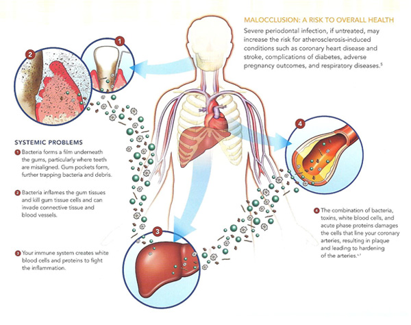 the correlation between gum disease and heart disease