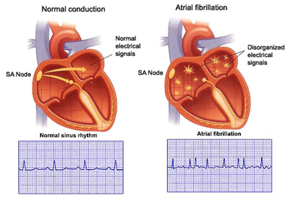 the difference between normal heat and atrial fibrillation