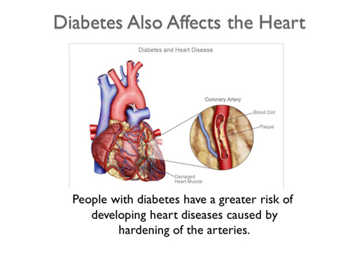 the effect of diabetes for heart disease