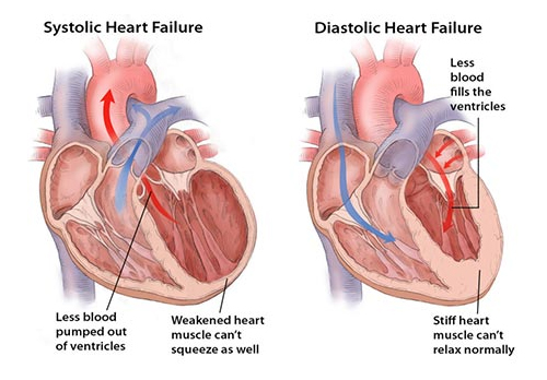 the exact condition of heart failure