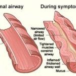 shortness of breath muscle in body