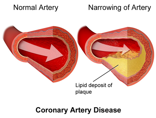artery blockage