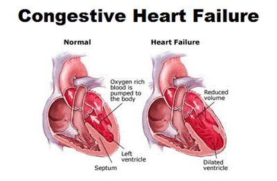 congestive heart failure caused by reduce volume of blood