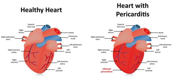 heart complication