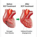heart treatments