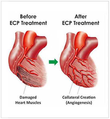 heart treatments